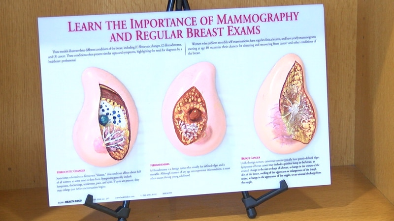 A diagram at UT Health's Breast Cancer Center reminds patients about the importance of...